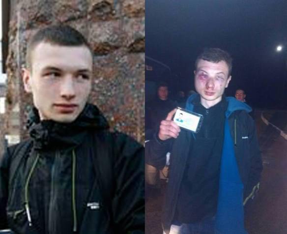 activist Serhiy Bondar before and after meeting Avakov's cops in the Kharkiv Region.